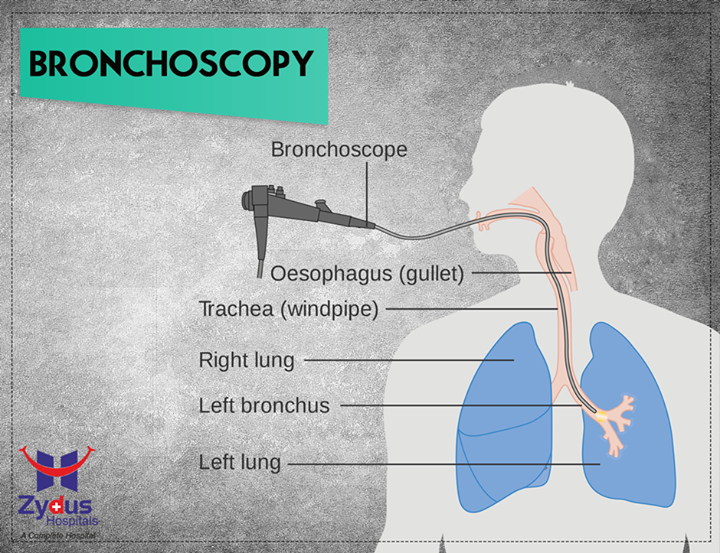 #DidYouKnow #MedicalFacts #ZydusHospitals #Ahmedabad  #Bronchoscopy is a procedure that allows your doctor to look at your airway through a thin viewing instrument called a bronchoscope. During a bronchoscopy , your doctor will examine your throat, larynx , trachea , and lower airways