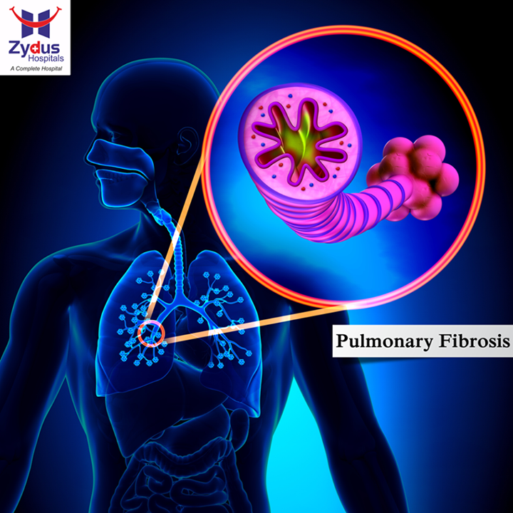 Pulmonary fibrosis is a respiratory disease in which scars are formed in the lung tissues, leading to serious breathing problems. Scar formation, the accumulation of excess fibrous connective tissue, leads to thickening of the walls, and causes reduced oxygen supply in the blood. As a consequence patients suffer from perpetual shortness of breath.  #LungDiseases #PulmonaryFibrosis #ZydusHospitals #Ahmedabad