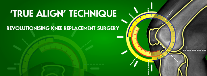 The revolutionizing #TrueAlign technique from Zydus Hospitals !  #KneeReplacements #Ahmedabad