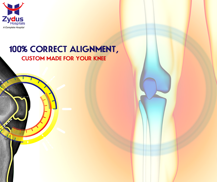 """True Align Technique"" offers an amazing made-for you knee replacement procedure which ensures 99.99% correct alignment!  #TrueAlignTechnique #KneeReplacement #ZydusHospitals #Ahmedabad"