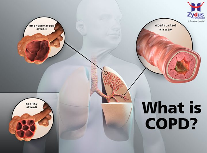 Two conditions make up what we commonly refer to as COPD: emphysema and chronic bronchitis. Emphysema damages the air sacs in the lungs, causing shortness of breath. Chronic bronchitis is very similar, and also impairs breathing ability. Other conditions grouped under the COPD umbrella include non-reversible asthma and some forms of bronchiectasis, a condition defined by the widening, stretching, and scarring of the airways in the lungs.  #COPD #BreathingDisability #Bronchitis #LungDiseases #ZydusHospitals #Ahmedabad