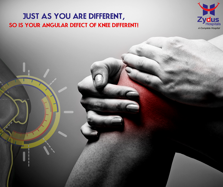 """Just as no two people's bones are same and no two people's angular defect of knee is same! With """"True Align Technique"""" Zydus Hospitals offer you a #kneereplacementprocedure that's customized for your knee defect.  #TrueAlignTechnique #KneeReplacement #ZydusHospitals #Ahmedabad"""