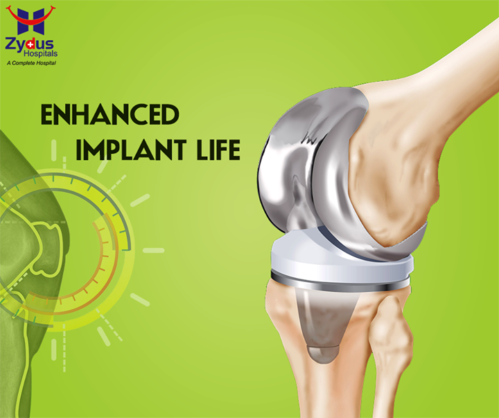 """You now don't have to worry about the short-lived implants through the regular operative surgeries! With """"#TrueAlignTechnique"""" experience an enhanced implant life!  #ZydusHospitals #KneeReplacement #Ahmedabad #JointReplacement #GoodHealth"""