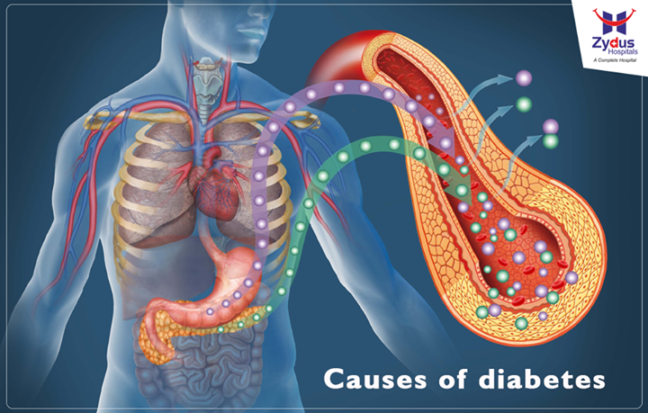 Diabetes is a group of diseases characterised by high blood glucose levels that result from defects in the body's ability to produce and/or use insulin. Causes of type 1 diabetes: Type 1 is thought to be caused by a combination of genetic susceptibility and environmental factors, though exactly what many of those factors are is still unclear. Causes of prediabetes and type 2 diabetes:  Being overweight is strongly linked to the development of type 2 diabetes, but not everyone with type 2 is overweight.  #Diabetes #Causes #HealthCheck #ZydusHospitals #Ahmedabad