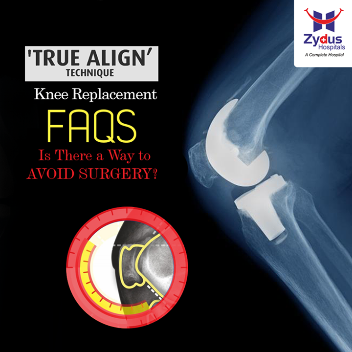 In few cases, lifestyle modifications, physiotherapy and expert supervised medication, or phototherapy (which involves injecting a specific fluid to strengthen connective tissue) can help manage some knee problems. However, prolonged delay or declining a necessary knee replacement could result in a less favourable outcome. If you have tried medication, physiotherapy, kitchen remedies and suggestions from friends / neighbours and the knee pain is still holding you back from doing the things - it is time to plan a Knee Replacement Surgery.  To know more on Knee replacement visit our website: http://www.zydushospitals.com/joint-knee-replacement.html  Or call us on 1800 123 5433  #ZydusHospitals #Ahmedabad