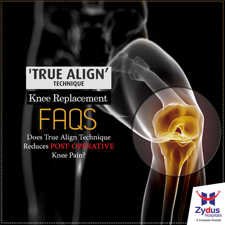 Of course it does, with True Align #Technique we ensure to mimic and bring back the natural alignment of the Knee Joint, a perfect aligned knee with well-balanced load sharing on both the compartments of the knee.  To know more on Knee replacement visits our website: http://www.zydushospitals.com/joint-knee-replacement.html  or  call us on 1800 123 5433  #KneeReplacement #VisitUs #ZydusHospitals #Ahmedabad