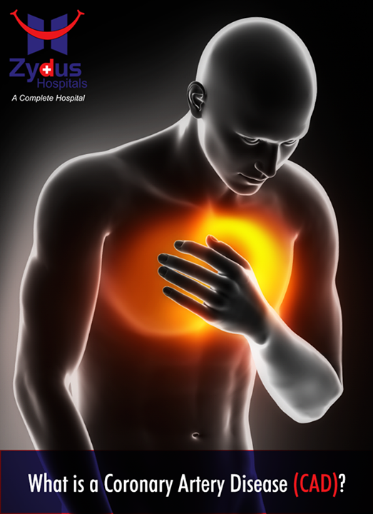 Coronary artery disease (CAD) occurs when the arteries supplying blood to the heart / cardiac muscles (coronary arteries) become hardened and/or narrowed. This occurs due to the buildup of plaque on the inner walls or lining of the arteries (atherosclerosis). Blood flow to the heart is reduced as plaque narrows the coronary arteries. This #decreases the oxygen supply to the heart muscle.  #CoronaryArteryDisease #CAD #ZydusCares #CardiacCare #ZydusHospitals #Ahmedabad