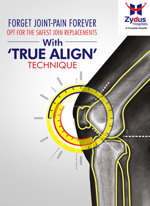 #TrueAlignTechnique involves formulating a surgical plan which includes complex pre-operative planning aiming at achieving better Alignment & Balance & minimal peri-operative complications!  To know more on Knee replacement visit our website: http://www.zydushospitals.com/joint-knee-replacement.html Or call us on 1800 123 5433  #ZydusHospitals #Ahmedabad