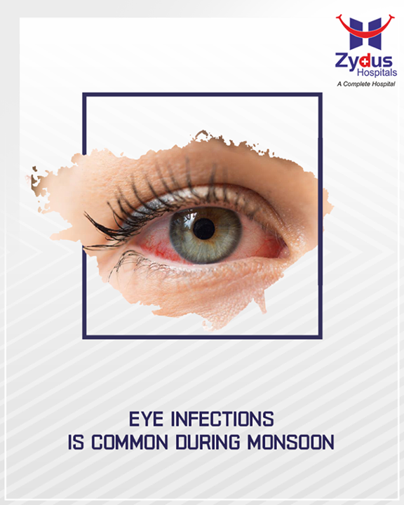 Eye infections like conjunctivitis, stye, dry eyes and corneal ulcers are common during the monsoon. This can lead to blindness if ignored. Refrain from touching eyes especially with dirty hands.  #Monsoon #StayHealthy #ZydusCare #ZydusHospitals #Ahmedabad #Gujarat