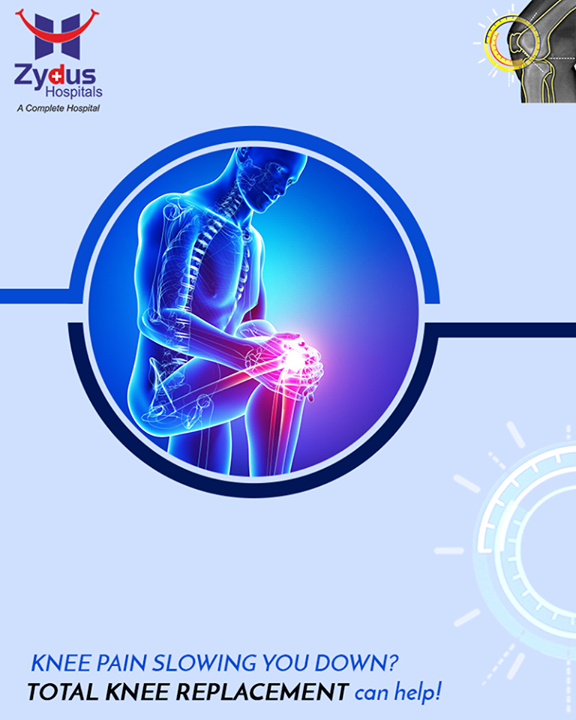 Total Knee Replacement gives you an opportunity to get on with your daily activities without any hindrance.  #KneeReplacement #ZydusHospitals #StayHealthy #Ahmedabad #GoodHealth