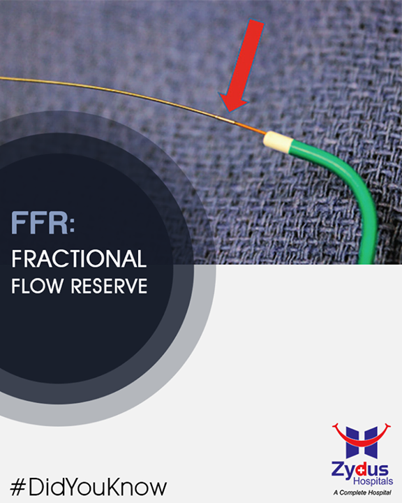 (FFR) is a technique used in coronary catheterization to decide the severity of coronary artery blockage.  #FFR #DidYouKnow #ZydusHospitals #StayHealthy #Ahmedabad