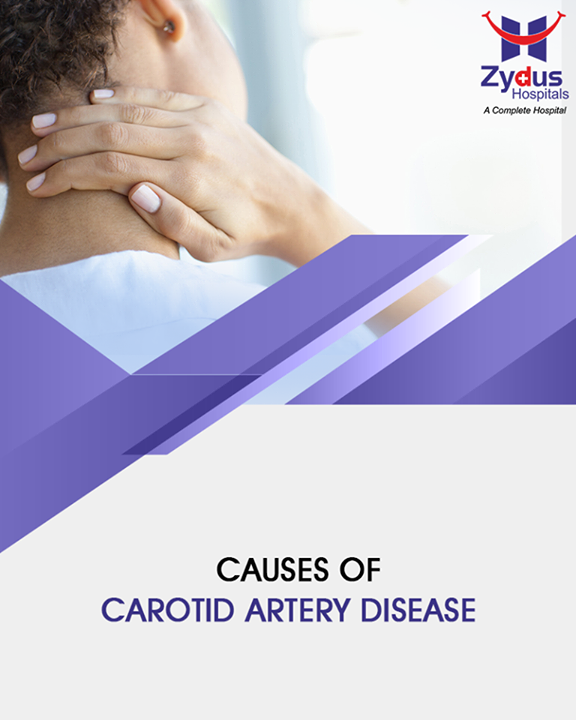 Your arteries are normally smooth and unobstructed on the inside, but as you age, a substance called plaque can build up in the walls of your arteries. Plaque is made up of cholesterol, calcium, and fibrous tissue. As more plaque builds up, your arteries narrow and stiffen. This process is called atherosclerosis, or hardening of the arteries.     #DidYouKnow #ZydusHospitals #ZydusCare #StayHealthy #Ahmedabad