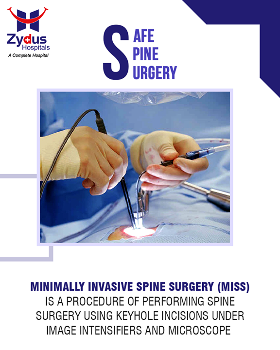 Minimally Invasive Spine Surgery (MISS) leads to early recovery, less blood loss, less post-operative pain, lower infection and shorter hospitalization.  #SafeSpineSurgeries #ZydusHospitals #ZydusCare #StayHealthy #Ahmedabad