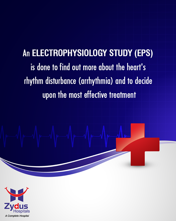 An EPS provides your doctor with information about your heart's electrical system, to find out why your heart beats too quickly, or why it does not beat in a regular pattern.  #Heartbeats #HeartCare #HealthyYou #ZydusHospitals #ZydusCare #StayHealthy #Ahmedabad