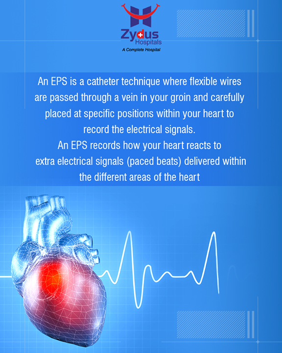 An Electro-Physiology Study (EPS) helps in diagnosing the cause of arrhythmia.  #ElectroPhysiologyStudy #EPS #Arrhythmia #Heartbeats #HeartCare #HealthyYou #ZydusHospitals #ZydusCare #StayHealthy #Ahmedabad