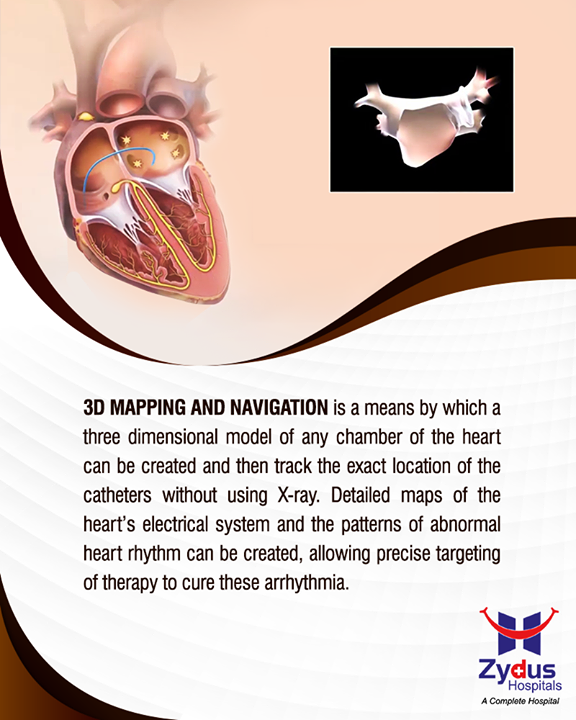 3D mapping in diagnosing the Arrhythmia  #Arrhythmia #Heartbeats #HeartCare #HealthyYou #ZydusHospitals #ZydusCare #StayHealthy #Ahmedabad