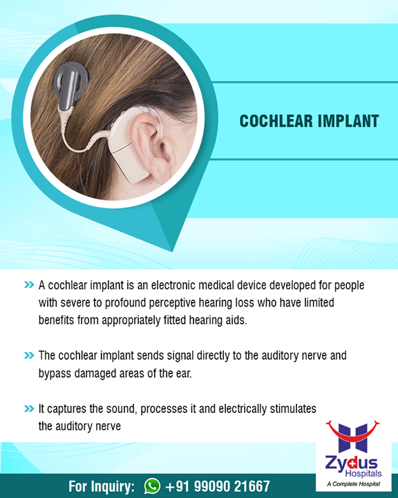 Cochlear implantation is a safe and proven procedure that every day helps to improve hearing and the quality of life for over 3,00,000 people around the world.   #Cochlear #Implant #ENT #ZydusHospitals #StayHealthy #Ahmedabad #GoodHealth