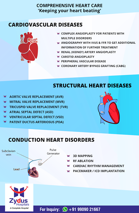 Keeping your heart beating!  #ZydusHospitals #StayHealthy #Ahmedabad #GoodHealth