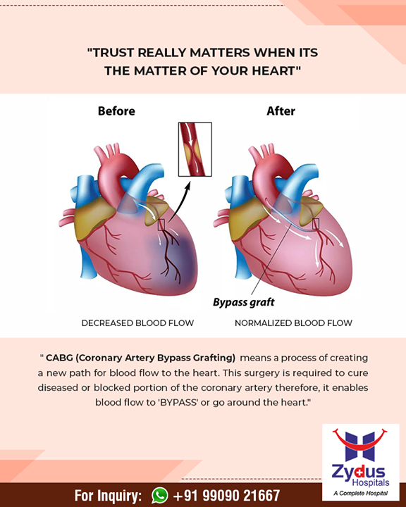 It's a matter of #heartcare!  #ZydusHospitals #StayHealthy #Ahmedabad #GoodHealth