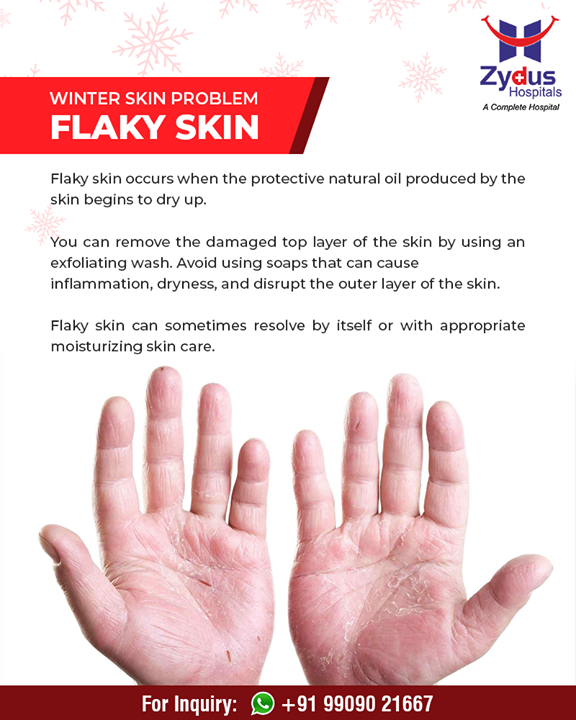 Flaky skin is a common #winter skin problem that needs basic care!  #ZydusHospitals #StayHealthy #Ahmedabad #GoodHealth #WinterHealth #SkinProblems