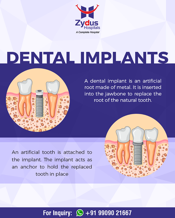 All that you wanted to know about #DentalImplants!   #ZydusHospitals #StayHealthy #Ahmedabad #GoodHealth #DentalHealth
