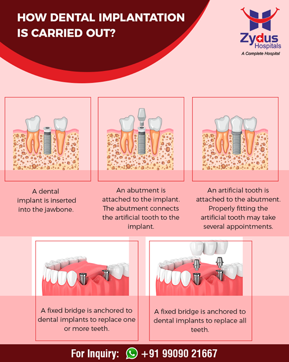 All you wanted to know about #dentalimplants!   #ZydusHospitals #StayHealthy #Ahmedabad #GoodHealth #DentalHealth