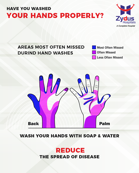 Washing hands efficiently is an integral part of personal hygiene. Have you washed your hands properly?  #StayHealthy #ZydusCare #ZydusHospitals #Ahmedabad #Gujarat