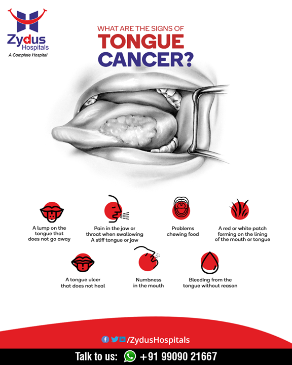 Take a look at the signs & symptoms of tongue cancer.   #CancerCare #ZydusCare #ZydusHospitals #Ahmedabad #Gujarat