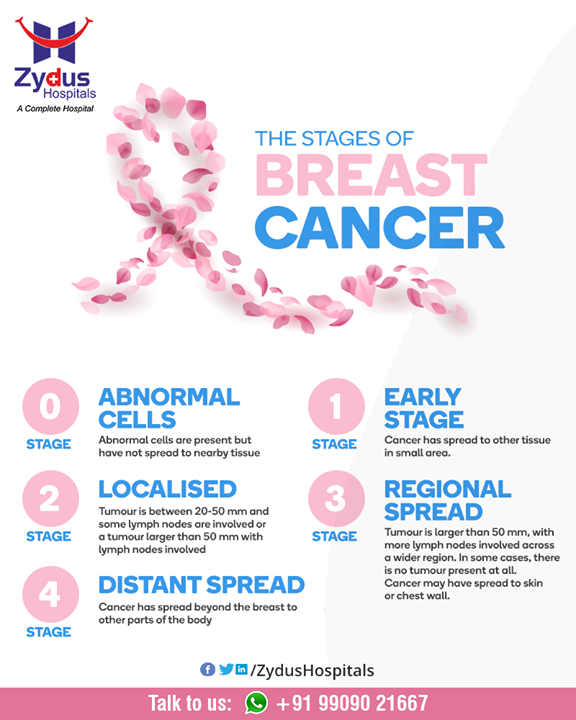 Staging describes or classifies cancer based on how much cancer there is in the body and where it is when first diagnosed. This is often called the extent of cancer. Check out the stages of cancer & take steps before it's too late!  #BreastCancer #CancerCentre #ZydusCancerCentre #CancerCare #ZydusCare #ZydusHospitals #Ahmedabad #Gujarat