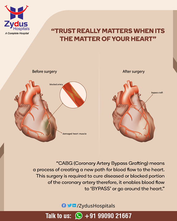 Trust really matters when its the matter of your HEART  #HeartCare #HeartDisease #GoodHeartCare #StayHealthy #ZydusCare #ZydusHospitals #Ahmedabad #Gujarat