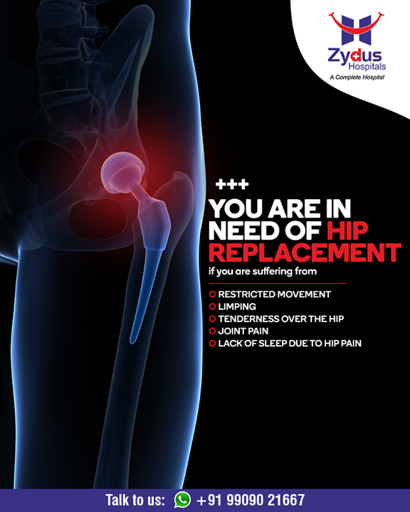 Hip replacement relieves your pain and helps you get back to enjoying normal, everyday activities.  #Hipreplacement #JointPain #jointreplacement #truealigntechnique #HipJointReplacement #StayHealthy #ZydusCare #ZydusHospitals #Ahmedabad #Gujarat