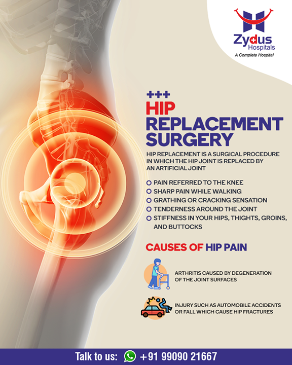 Hip replacement is a surgical procedure in which the hip joint is replaced by an artificial joint. If you too are suffering through this same pain, then consult us right away!   #Hipreplacement #JointPain #jointreplacement #truealigntechnique #HipJointReplacement #StayHealthy #ZydusCare #ZydusHospitals #Ahmedabad #Gujarat