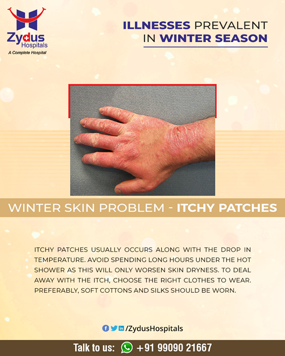 Itchy patches usually occurs along with the drop in temperature. Your skin may become scaly, bumpy, itchy, or otherwise irritated.   #WinterSkinProblem #Rash #ItchyPatches #Winter #ZydusHospitals #HealthCare #ZydusCare #Ahmedabad