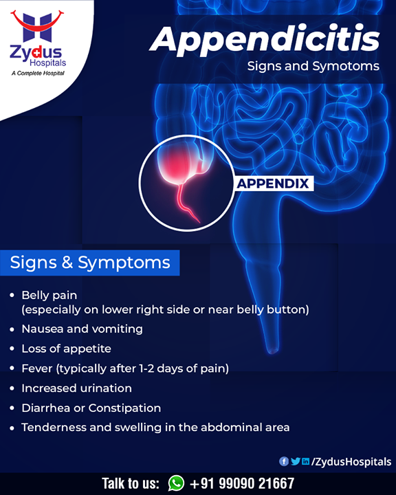 The appendix is a small, pouch-like sac of tissue that is located in the first part of the colon (cecum) in the lower- right abdomen.  Appendicitis is inflammation of the appendix. Appendicitis occurs when mucus, stool, or a combination of the two blocks the opening of the appendix that leads to the cecum.   #Appendicitis #ZydusHospitals #HealthCare #ZydusCare #Ahmedabad