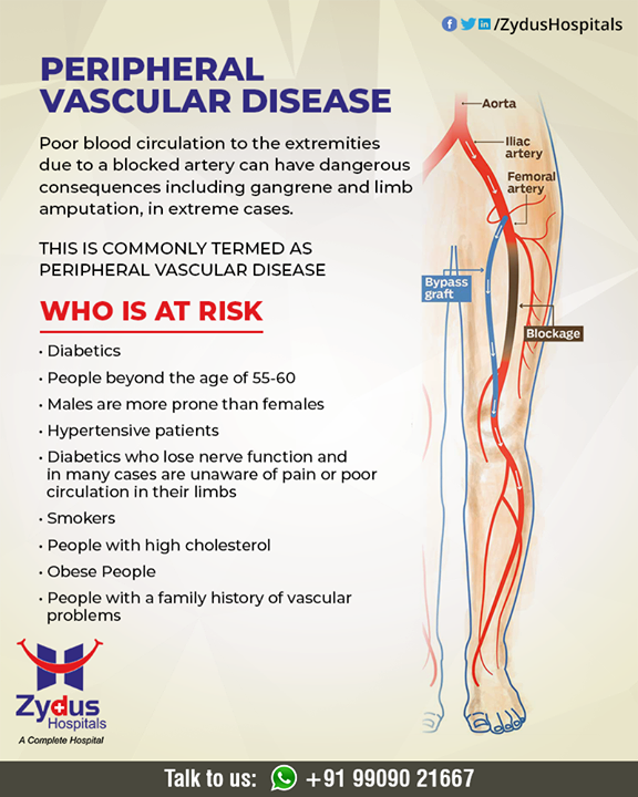 :: Peripheral Vascular Disease::  A circulatory condition in which narrowed blood vessels reduce blood flow to the limbs.  #PeripheralVascularDisease #ZydusHospitals #HealthCare #ZydusCare #Ahmedabad