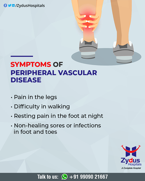 Peripheral vascular disease is a sign of fatty deposits and calcium building up in the walls of the arteries (atherosclerosis).   #PeripheralVascularDisease #ZydusHospitals #HealthCare #ZydusCare #Ahmedabad