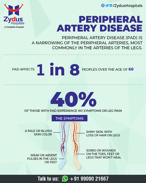 Peripheral artery disease (P.A.D.) is a disease in which plaque builds up in the arteries that carry blood to your head, organs, and limbs.   #PeripheralArteryDisease #BloodVessels #ZydusHospitals #HealthCare #ZydusCare #Ahmedabad