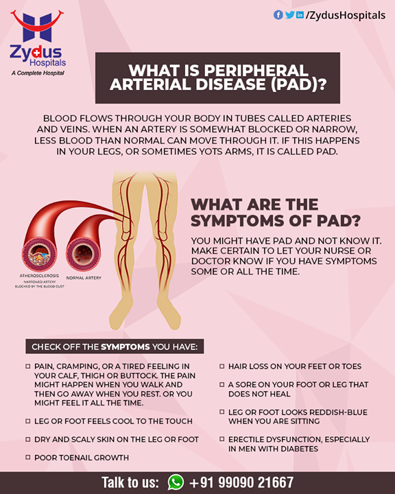 Peripheral Arterial Disease can cause pain and changes in skin color and temperature. It can make it hard to walk or stand for long periods of time. It can get worse over time. If PAD is not treated, and blood flow is completely blocked, it can permanently damage the part of your body.  #PeripheralArteryDisease #BloodVessels #ZydusHospitals #HealthCare #ZydusCare #Ahmedabad