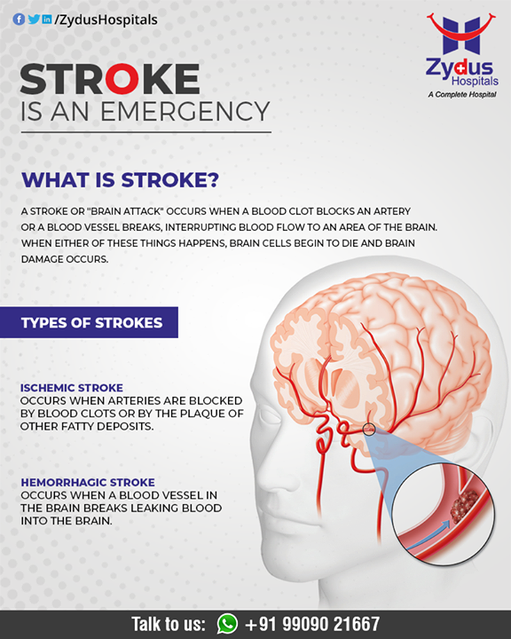 A stroke is a medical emergency. It damages the brain from the interruption of its blood supply.  #BrainStroke #Stroke #StrokeCare #ZydusHospitals #HealthCare #ZydusCare #Ahmedabad