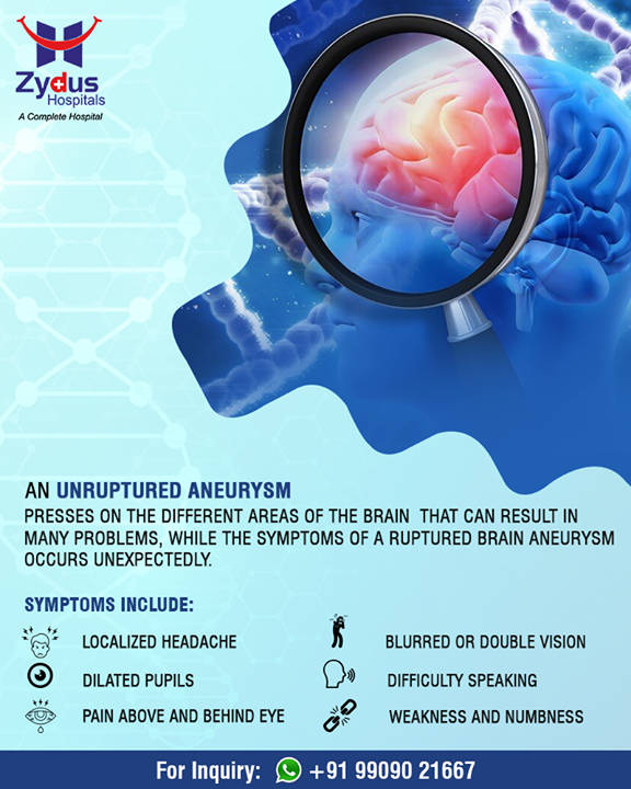 An unruptured aneurysm presses on the different areas of the brain that can result in many problems!  #NeuroSurgery #BrainAneurysms #ZydusHospital #Ahmedabad #Gujarat