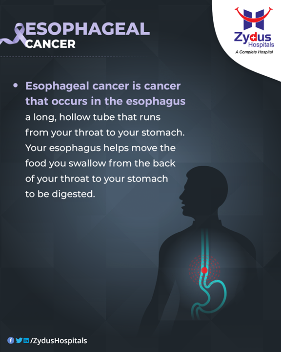 Esophageal cancer is cancer that occurs in the esophagus.  #EsophagealCancer #CancerCentre #ZydusCancerCentre #CancerCare #ZydusCare #ZydusHospitals #Ahmedabad #Gujarat