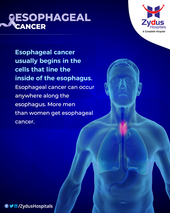 Men are more likely than women to get esophageal cancer.  #EsophagealCancer #CancerCentre #ZydusCancerCentre #CancerCare #ZydusCare #ZydusHospitals #Ahmedabad #Gujarat