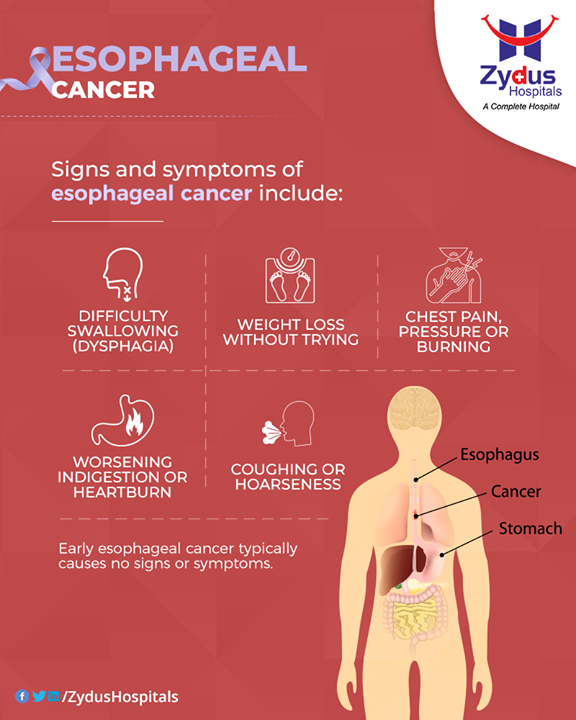 Know the signs and symptoms of esophagus cancer.  #EsophagealCancer #CancerCentre #ZydusCancerCentre #CancerCare #ZydusCare #ZydusHospitals #Ahmedabad #Gujarat