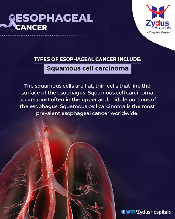 Esophageal cancer develops in the inner lining of the esophagus. There are two main types of esophageal cancer. One type is squamous cell carcinoma other type is called adenocarcinoma  #EsophagealCancer #CancerCentre #ZydusCancerCentre #CancerCare #ZydusCare #ZydusHospitals #Ahmedabad #Gujarat