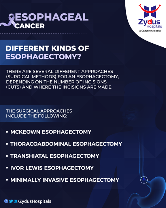 There are several different approaches (surgical methods) for an esophagectomy, depending on the number of incisions (cuts) and where the incisions are made.   The surgical approaches include the following:  McKeown esophagectomy: The incisions are made in the neck, chest and abdomen (belly) to remove the esophagus and rebuild the gastrointestinal tract.  Thoracoabdominal esophagectomy: A single incision is made from the chest to the abdomen on the left side, and an incision is made in the neck.  Transhiatal esophagectomy: Incisions are made in the neck and abdomen, with the intervening esophagus being dissected out bluntly (with the fingers).  Ivor Lewis esophagectomy: One incision is on the right side of the chest and the other in the abdomen.  Minimally invasive esophagectomy: The surgeon may choose to do a portion or all of the esophagectomy using minimally invasive techniques. A robot may be used in the chest and/or abdomen, a thoracoscope may be used in the chest, or a laparoscope may be used in the abdomen.  #Esophagectomy #EsophagealCancer #CancerCentre #ZydusCancerCentre #CancerCare #ZydusCare #ZydusHospitals #Ahmedabad #Gujarat