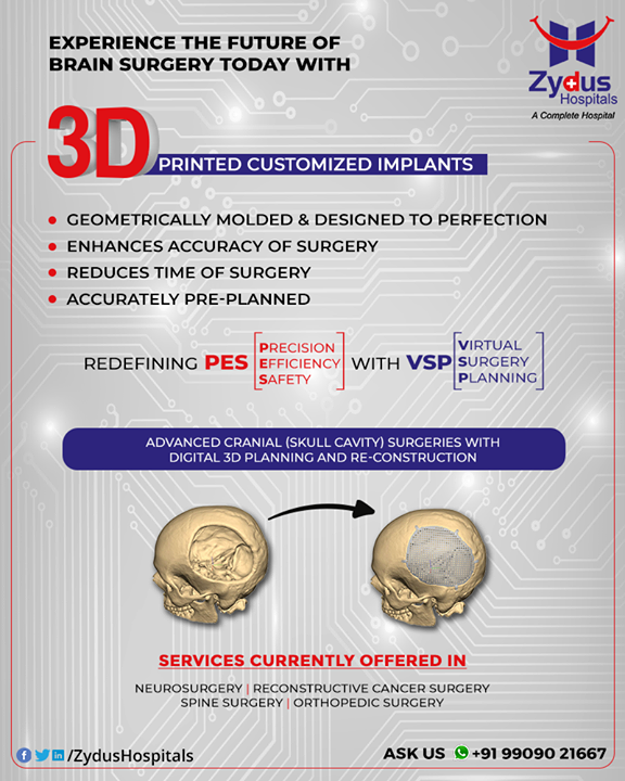 The Future of Brain Surgery is here! - Customized 3 D Printed Implants for Neurosurgery.   Zydus Hospitals always strives to be ahead of the time offering global standard quality and advanced surgical planning techniques.   Once again we pioneer in the region and introducing 3D Printed Customized Implants which will redefine the current Brain Surgery Techniques.  Want to know more Reach us on +91-9909021667 or leave a comment and we shall revert.  #BrainSurgery #Neurosurgery #Customized3DPrinted #BrainSurgeryTechniques #ZydusHospitals #Ahmedabad #SmileofGoodHealth