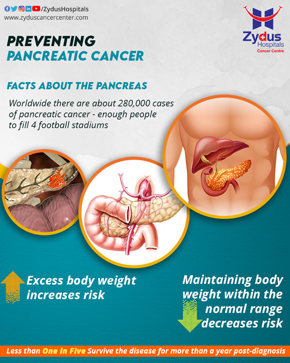 Risk factors usually influence the development of cancer, but most do not directly cause cancer. The cause of pancreatic cancer is often not known and hence risk factors are crucial signs, including body weight. A study showed that obesity was associated with a statistically significant 50–60% increased risk of pancreatic cancer.  #PancreaticCancer #Pancreas #PancreasDiseases #ZydusHospitals #ZydusCancerCentre #GoodHealth #Cancer #MultiSpecialtyHospital #CancerTreatment #CancerHospital #AhmedabadHospital #SGHighway #Ahmedabad