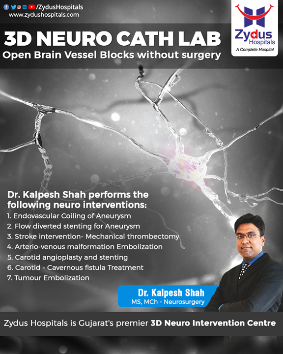 When blood clots clog the #blood vessels, the physiology of delivering blood to your #brain gets interrupted. The blockage increases the risk of #stroke. It can be managed efficiently in 3D Neuro Cath Labs and there is no involvement of #surgery in operation theatre.  With #ZydusHospitals, get treatment from the #Best endovascular experts in Gujarat.  #BrainVessels #BrainHemorrhage #BrainStroke #NervousSystem #NeuroSurgery #BrainDisorders #Ahmedabad #BestHospitalinAhmedabad