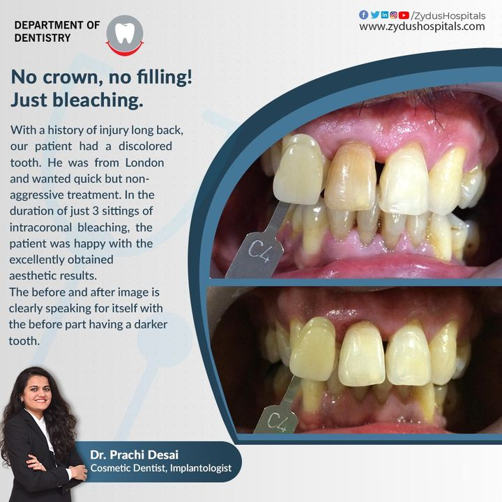 Intracoronal bleaching is a simple, useful procedure for restoring the colour of the discoloured teeth. Without the requirement of a crown or filling, one can obtain excellent results and brighter teeth. Dr.Prachi Desai  #ZydusHospitals #Dentistry #Dentist #IntracoronalBleacing #BleachingTeeth #BrighterTeeth #DentistTreatment #HealthCare #StayHealthy #ZydusCare #Ahmedabad #Gujarat #BestHospitalinAhmedabad