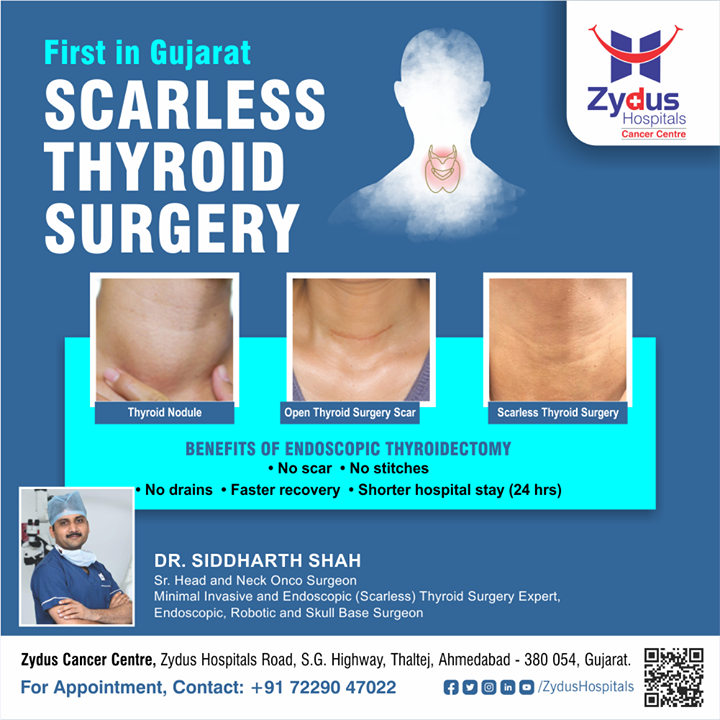 Zydus Hospitals has introduced first time in Gujarat, Endoscopic thyroidectomy, a relatively new approach in treating differentiated thyroid cancer. It allows the surgeon to perform thyroid surgery through a small skin incision, which leaves zero scars & leads way towards faster recovery.   #ZydusHospitals #CancerCentre #Thyroid #ThyroidSurgery #ThyroidDisease #NonInvasiveSurgery #NeckCancer #ScarlessSurgery #NoScar #Surgery #Surgeons #Cancer #CancerousDiseases #BeatCancer #CancerAwareness #CancerDoctors #HealthCare #StayHealthy #ZydusCare  #BestHospitalinAhmedabad #Ahmedabad #GoodHealth #ZydusCancerCentre #CancerHospital